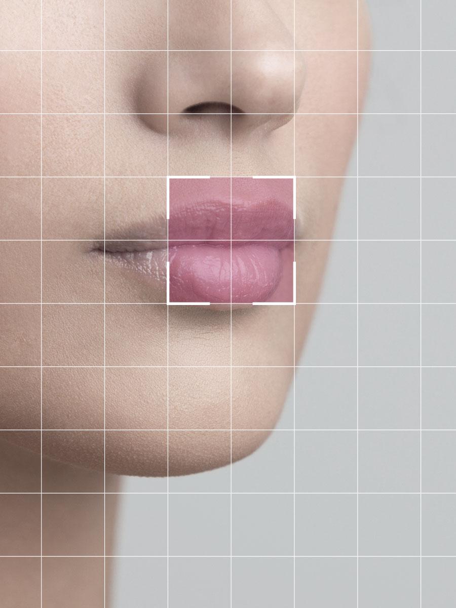 Lifting Labio superior (Lip Shortening)-quirestetica