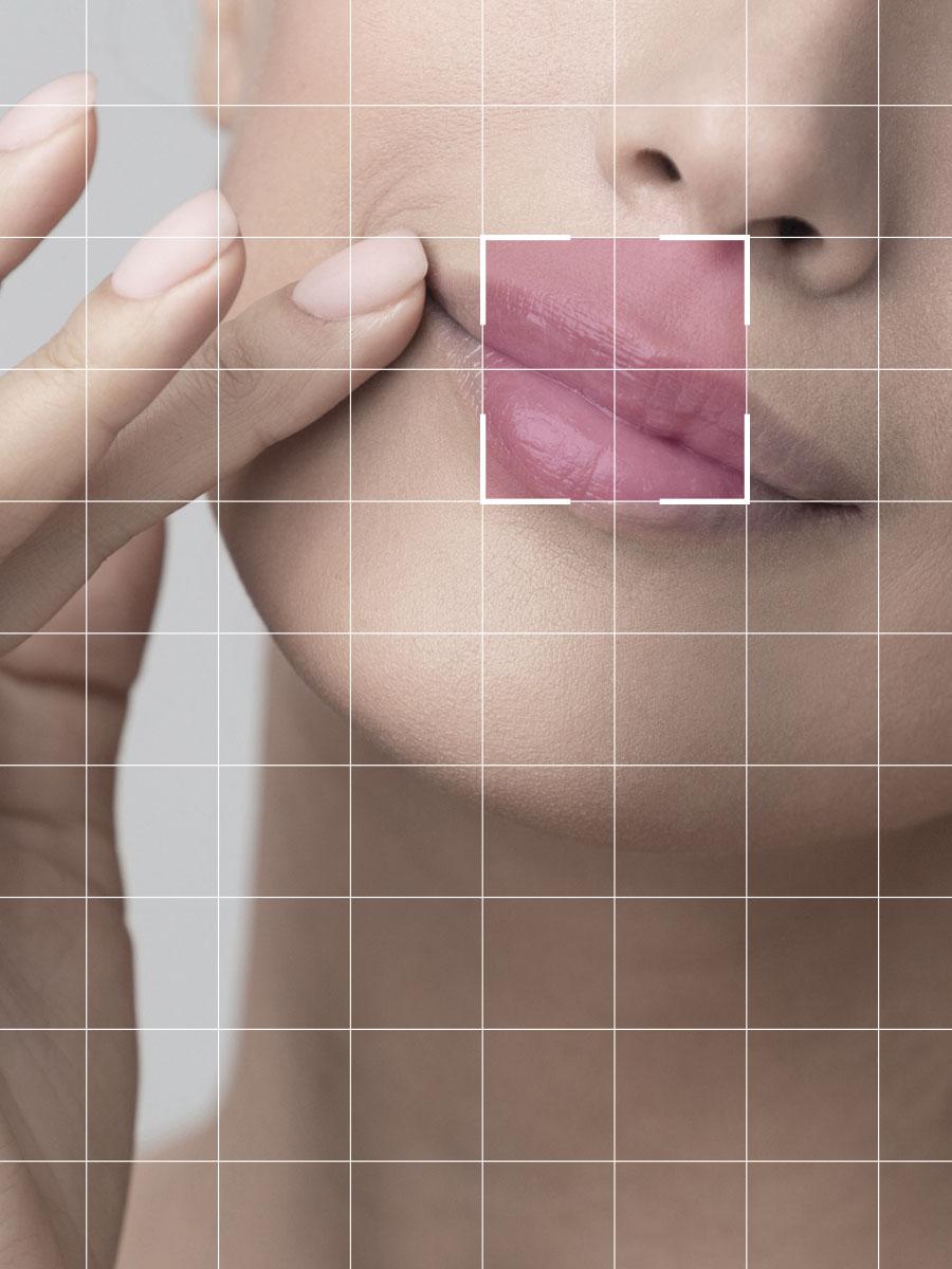 Peeling Labio superior-quirestetica