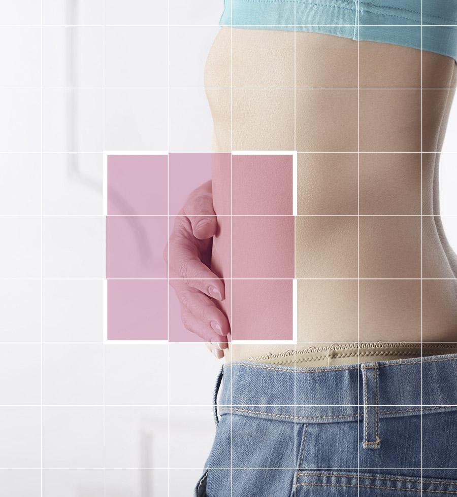 mini-abdominoplastia-quirestetica-marbella