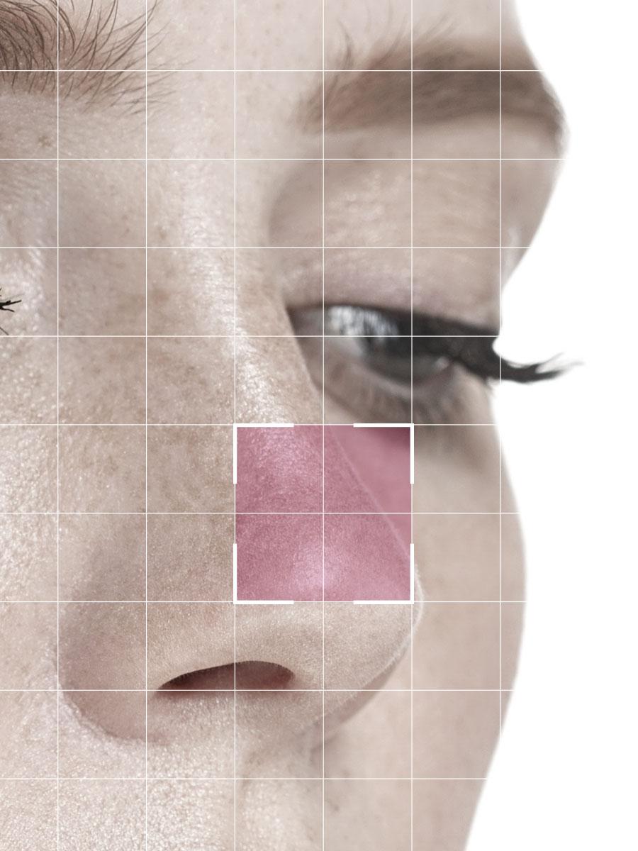 rinomodelacion-sin-cirugia-quirestetica-marbella