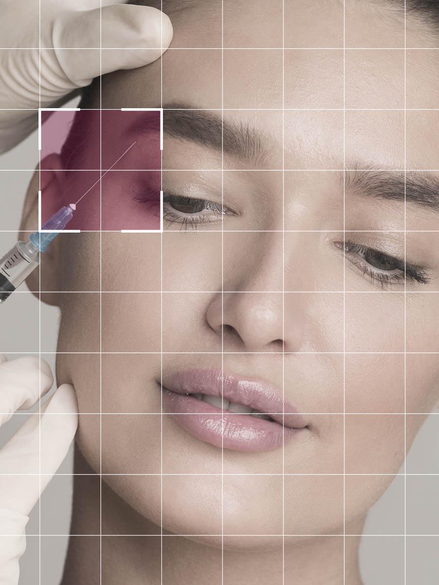 tratamiento-mesoterapia-facial-marbella-quirestetica